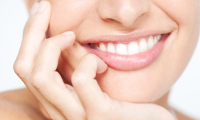 $225 At-Home Whitening Treatment
