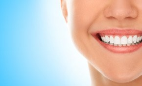 $175 for 1-Hour Chairside Whitening Plus Take-Home Bleaching Trays