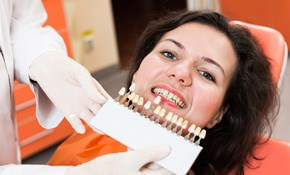 $179 for a Smile Make-Over Consultation and Digital Simulation