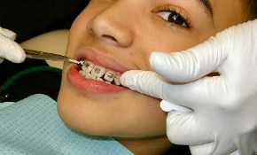 $4,299 for Phase 2 Orthodontic Braces Contract