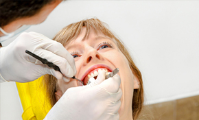 $350 for Comprehensive Exam, Cleaning, X-Rays and Oral Cancer Screening