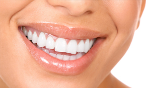 $199 for Professional In-Office Teeth Whitening (New Patients Only)
